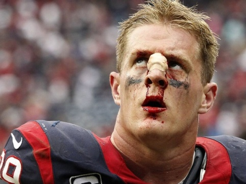 J.J.-Watt-Houston-Texans-bloody-nose-after-loss-to-Seahawks-September-2013_083030.jpg